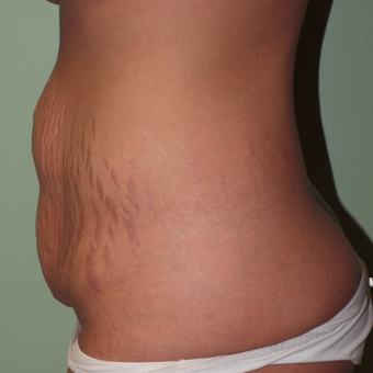 25-34 year old woman treated with Tummy Tuck before 2977749