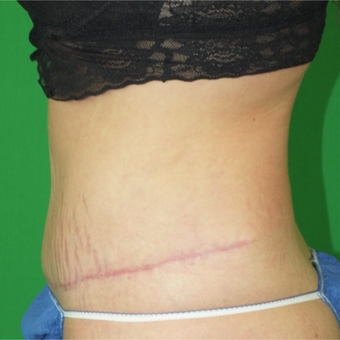 25-34 year old woman treated with Tummy Tuck after 2977749