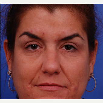 35-44 year old woman treated with Voluma after 3174710