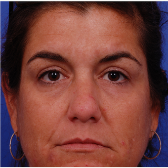 35-44 year old woman treated with Voluma before 3174710