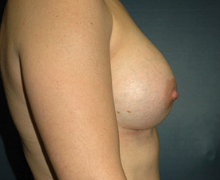 Breast Implants after 3545038