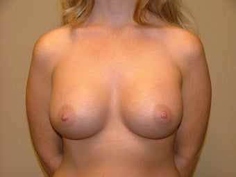 Breast Implants after 683096