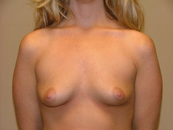 Breast Implants before 683096