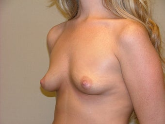 Breast Implants 683096