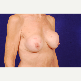 55-64 year old woman treated with Breast Implant Revision before 3663575