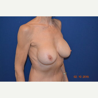 55-64 year old woman treated with Breast Implant Revision after 3663575