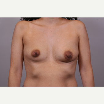 25-34 year old woman treated with Breast Augmentation before 3769311