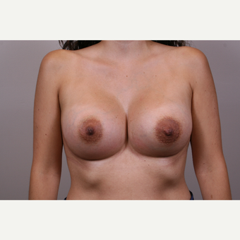 25-34 year old woman treated with Breast Augmentation after 3769311