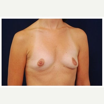 35-44 year old woman treated with Inspira Breast Implants before 1868471