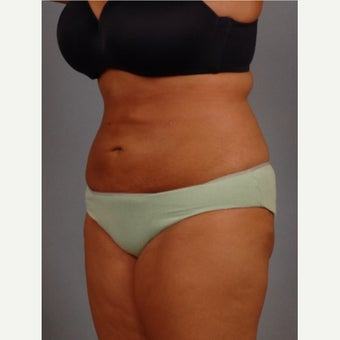 35-44 year old woman treated with Vaser Liposuction after 2479289