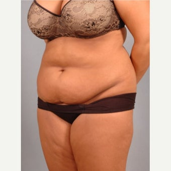 35-44 year old woman treated with Vaser Liposuction before 2479289