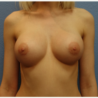 25-34 year old woman treated with Breast Augmentation after 3105259