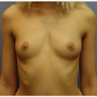 25-34 year old woman treated with Breast Augmentation before 3105259