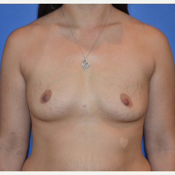 25-34 year old woman treated with Breast Augmentation before 3075543