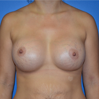 25-34 year old woman treated with Breast Augmentation after 3075543