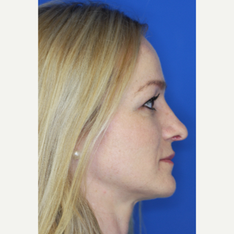 25-34 year old woman treated with Nose Surgery after 3093470