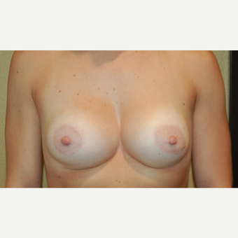 25-34 year old woman treated with Breast Lift with Implants after 3498087