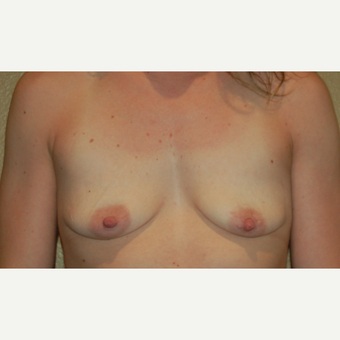 25-34 year old woman treated with Breast Lift with Implants before 3498087