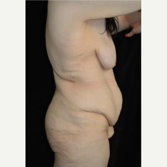 25-34 year old woman treated with Body Lift before 2269394