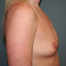 25-34 year old woman treated with Breast Augmentation before 3299839