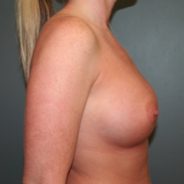 25-34 year old woman treated with Breast Augmentation after 3299839