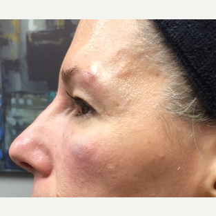 45-54 year old woman treated with Non Surgical Nose Job after 3662754