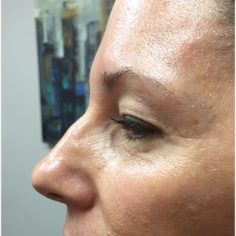 45-54 year old woman treated with Non Surgical Nose Job before 3662754