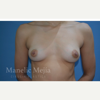 25-34 year old woman treated with Breast Augmentation before 3647371