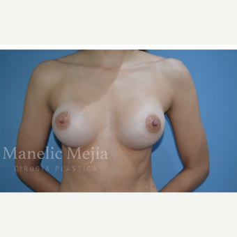 25-34 year old woman treated with Breast Augmentation after 3647371
