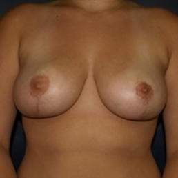 35-44 year old woman treated with Breast Reduction after 3618007
