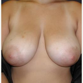 35-44 year old woman treated with Breast Reduction before 3618007