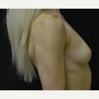 25-34 year old woman treated with Breast Implants before 3418261