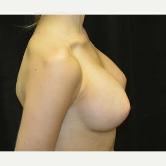 25-34 year old woman treated with Breast Implants after 3418261