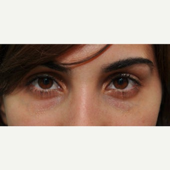 Tear trough treatment improves the appearance of under eye darkness