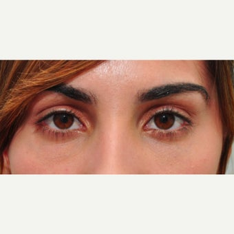 Tear trough treatment improves the appearance of under eye darkness after 2345267