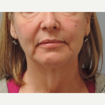 45-54 year old woman treated with Facelift before 3448884