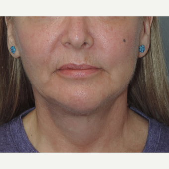45-54 year old woman treated with Facelift after 3448884