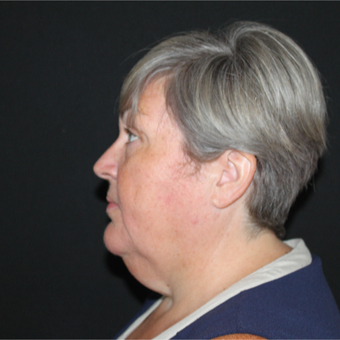 55-64 year old woman treated with Facelift before 3729327