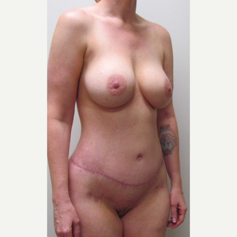 Lower Body Lift for this 38 Year Old Woman after 3791561