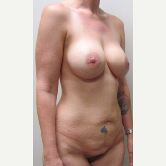 Lower Body Lift for this 38 Year Old Woman before 3791561