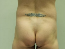 Extreme buttock reconstruction. before 2144540