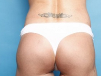 Extreme buttock reconstruction. after 2144540