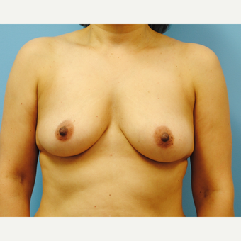 45 year old woman treated with Breast Augmentation - B to D cup. 430 cc ultra high profile before 3422816