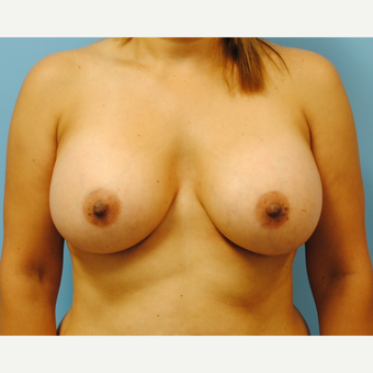 45 year old woman treated with Breast Augmentation - B to D cup. 430 cc ultra high profile after 3422816