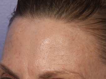 Limelight IPL to Forehead before 308350