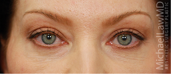 Eye Bag Surgery after 887157