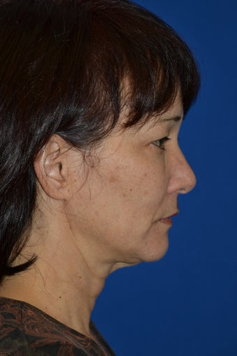 Ultherapy to cheeks and neck before 939789
