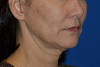 Ultherapy to cheeks and neck 939789