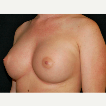 25-34 year old woman treated with Breast Implants after 3650989