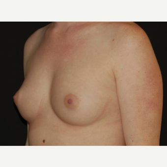 25-34 year old woman treated with Breast Implants before 3650989